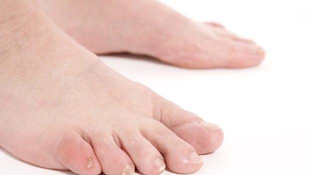 ¿Por que se tuerce el dedo pequeño del pie?