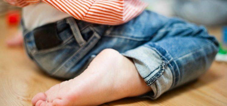 5 cosas que debes saber sobre los pies planos