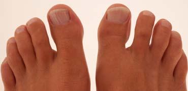 problema en los dedos de los pies sevilla podologo julia franco podologa