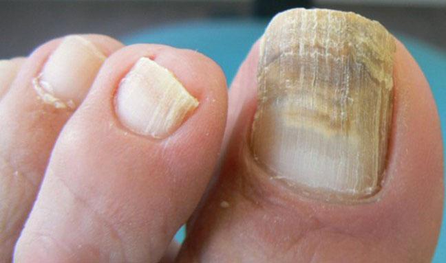 hongos en las uñas de los pies sevilla